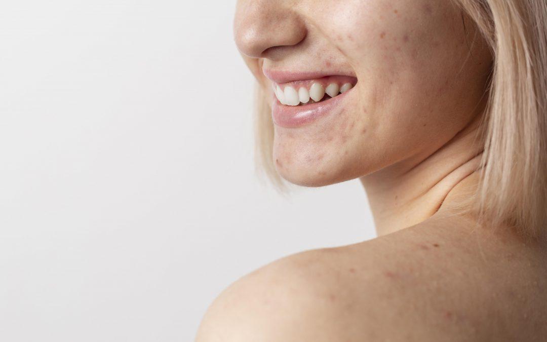 Qual è la crema ideale per chi ha la pelle grassa (o mista)? Caratteristiche e luoghi comuni